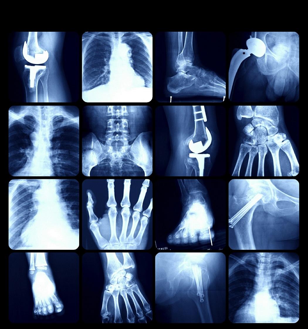 Diploma en Tomografía Computada Multicorte <br> Inscripciones 2020